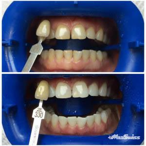 фото до и после отбеливания зубов