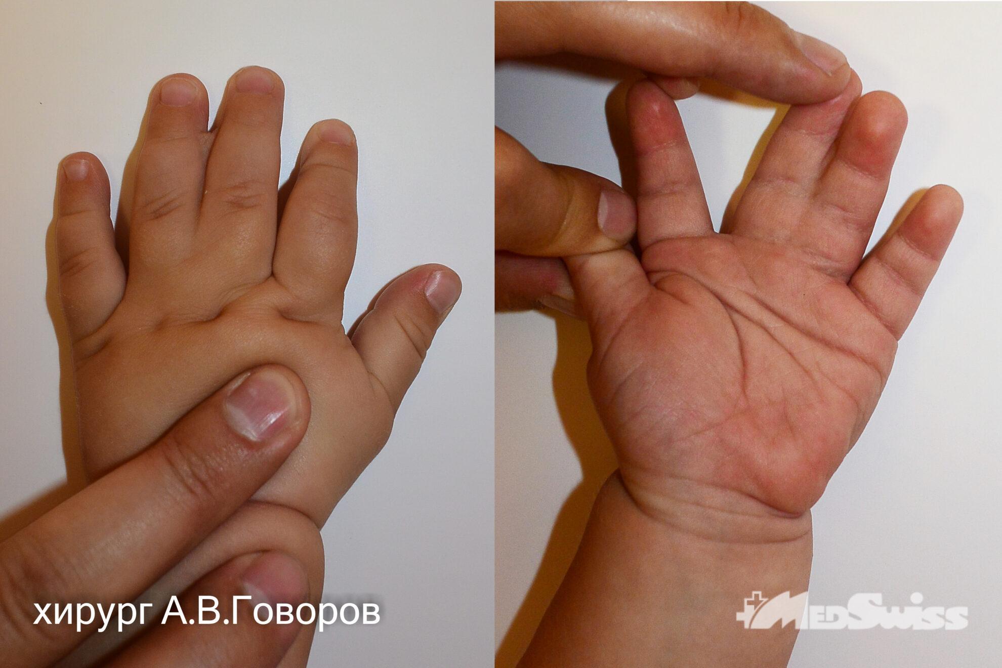 Врожденнаясиндактилия пальцевлевойкистихирургГоворов