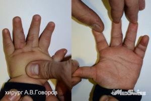 Врожденная синдактилия 3-4 пальцев левой кисти хирург Говоров