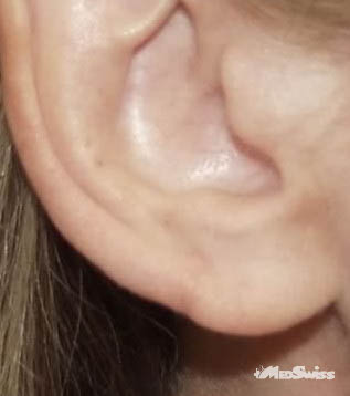 plastica uha po