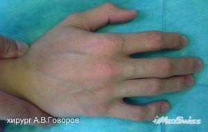 клиндактилия хирург говоров а в-4