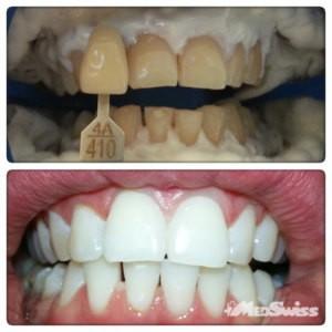отбеливание зубов до и после 12