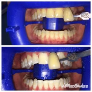 отбеливание зубов до и после 14