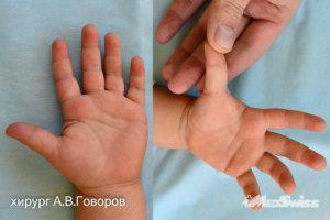 Стенозирующийлигаментитпервогопальцалевойкистихирургговоровав