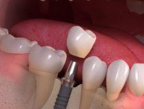 акция на имплантацию зубов
